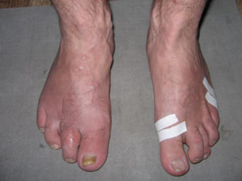 Ампутация 3 пальца правой стопы до подиатрической коррекции и сохраненный 2 палец после подиатрической коррекции стопы с использованием «Активного бальзама Бионет».